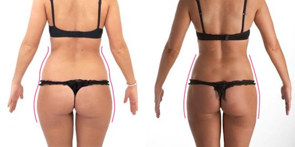Weight Management Programs - LASER LIPO WITH LASPAD LASER THERAPY ...