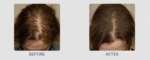 hair treatment for women, minoxidil before and after