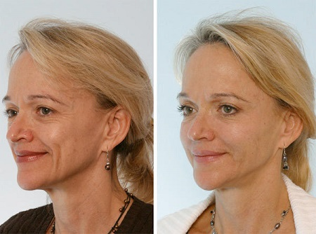 Hyaluronic Acid Before After Hyaluronic Acid Serum